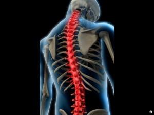 Escoliose - Tratamentos através da Fisioterapia, RPG e Pilates
