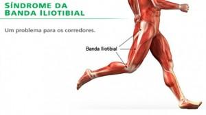 i-running_-_mldica79_-_sindroma_da_banda_ilio_tibial
