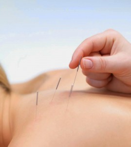 dry needling cervical