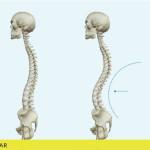 hiperlordose-lombar